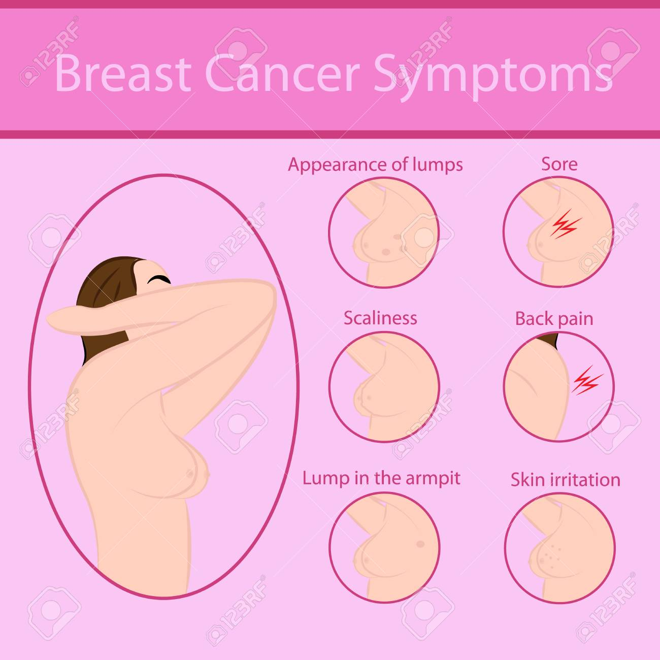 Breast Cancer Symptoms Vector Illustration Royalty Free Cliparts