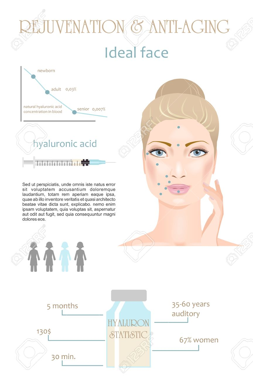 Rejuvenation and anti-aging therapy. Hyaluronic acid injection. Infographic. Vector - 43627909