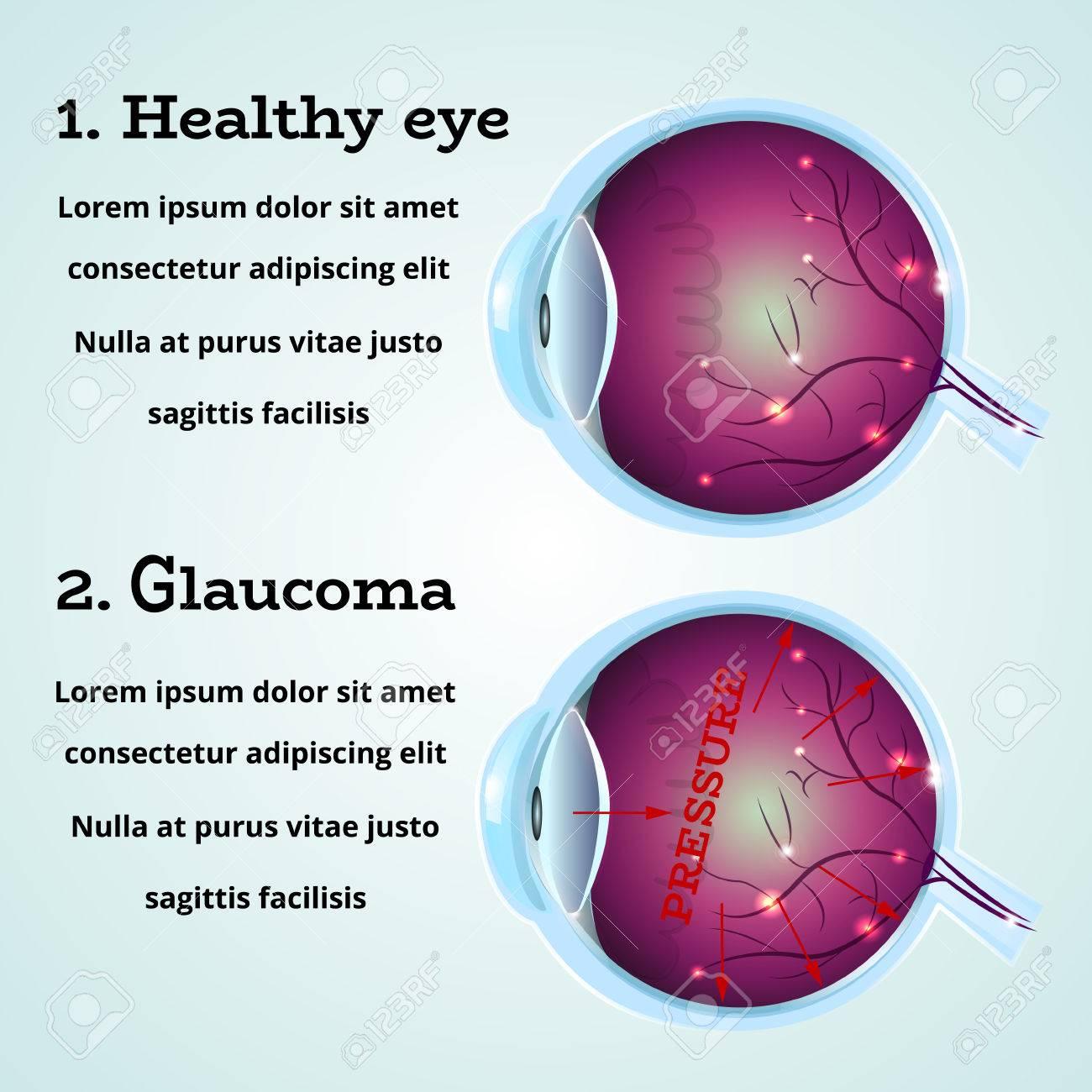 Ojo Sano Y Anatomía Enfermedad De Glaucoma Infografía Humanos ...