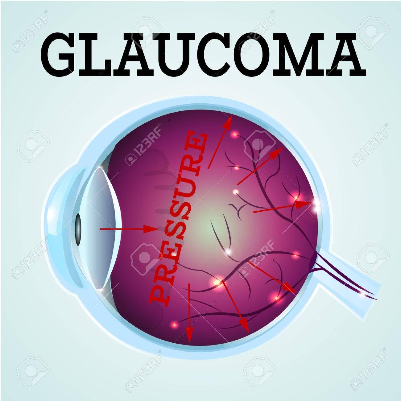 El Glaucoma Humano Anatomía Enfermedad Infografía Structure.Medical ...