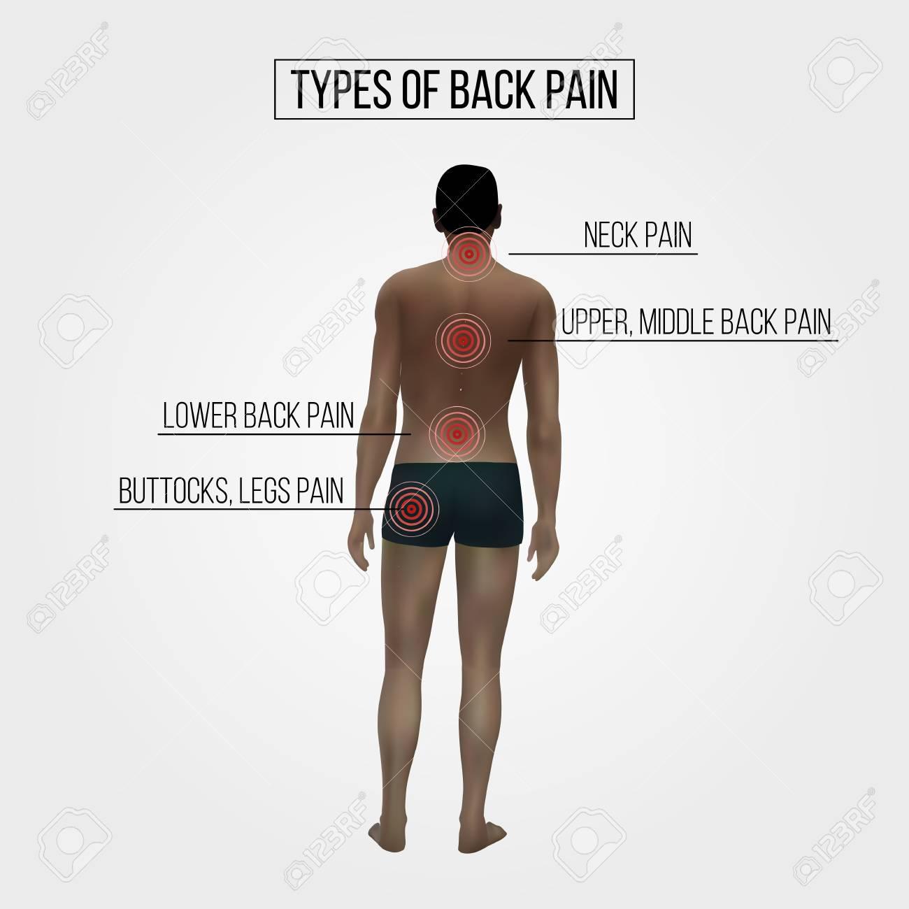 が 痛い 上部 背中