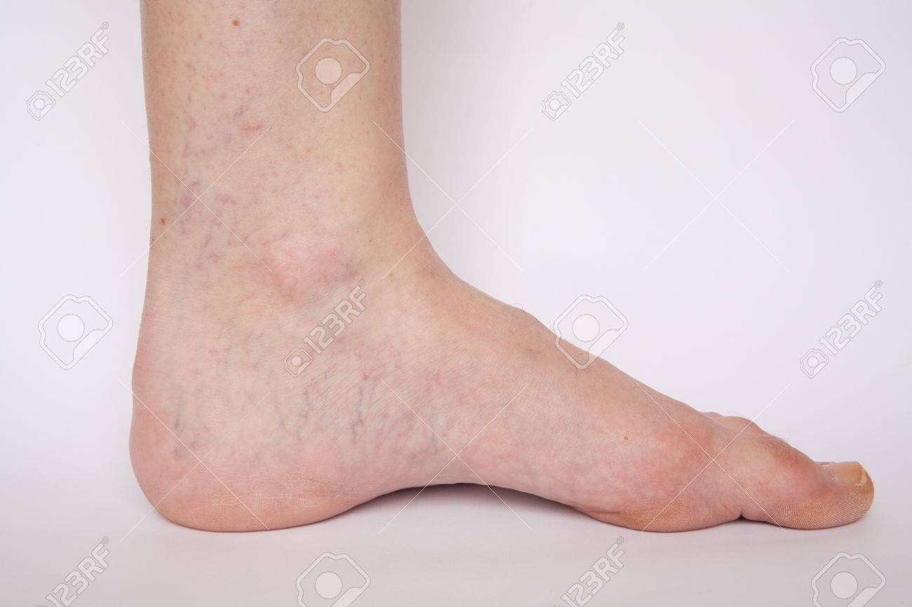 Varicose Veins Closeup Foot On Modular Bath Step Image Isolated