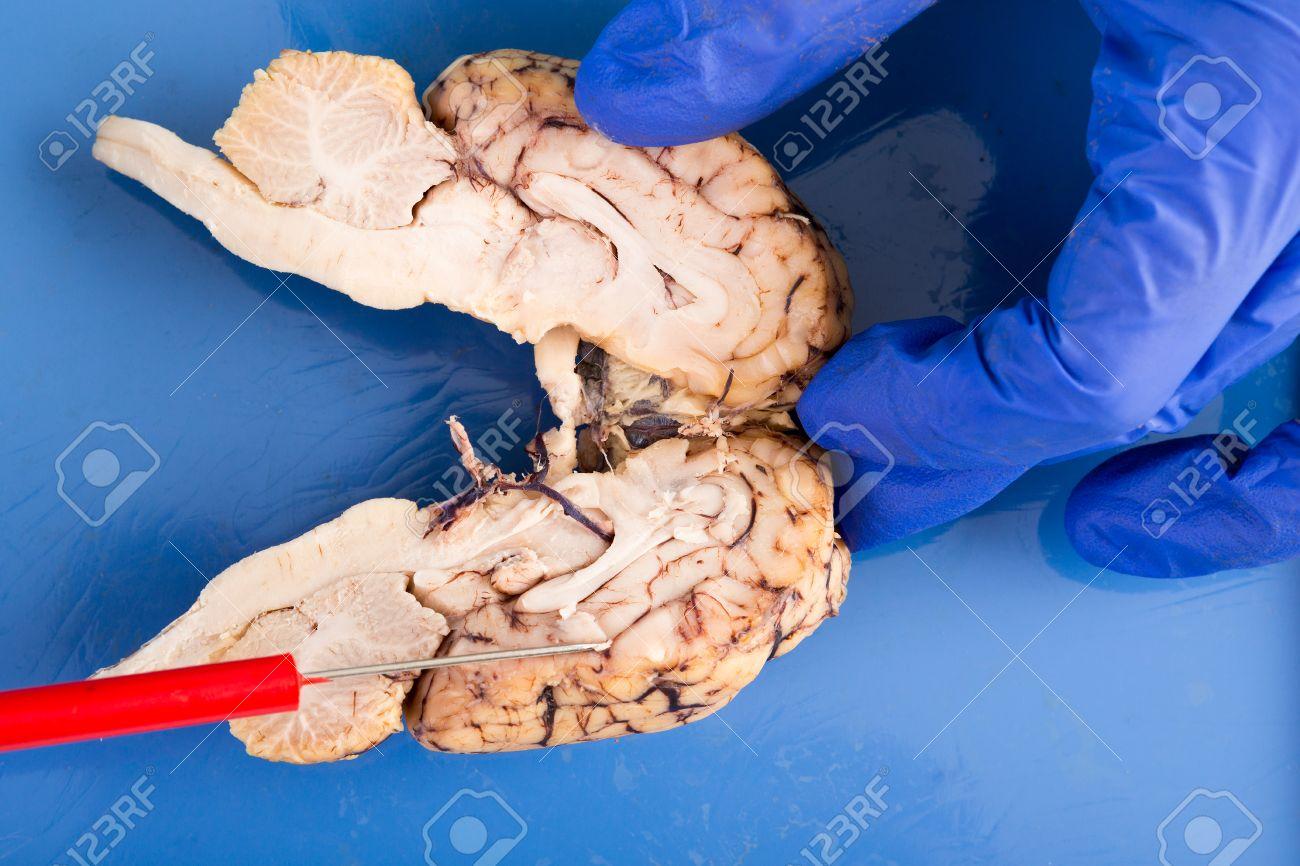 Sección Transversal Longitudinal De Un Cerebro De Vaca A Través Del Tronco Cerebral Y Lóbulos Que Muestra La Estructura Interna Intrincada Del Tejido