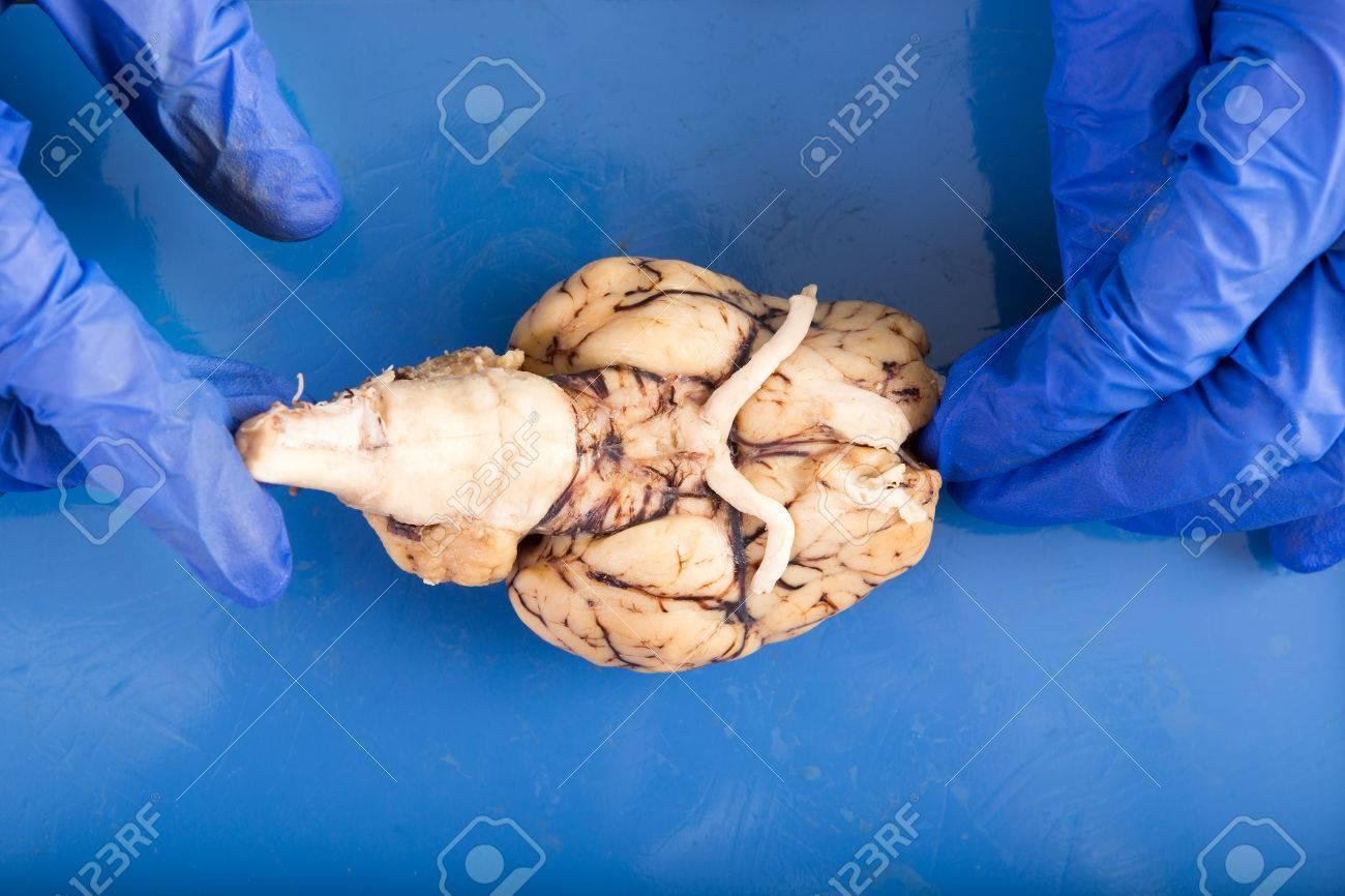 Estudiante Fisiología Disección De Un Cerebro De Vaca Diplaying La ...