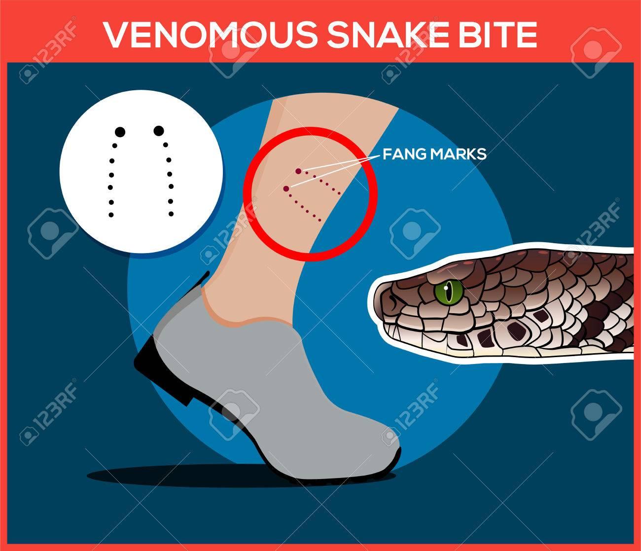 Venomous Snake Bite In The Leg. Snakebite. Beware Of Snakes ...