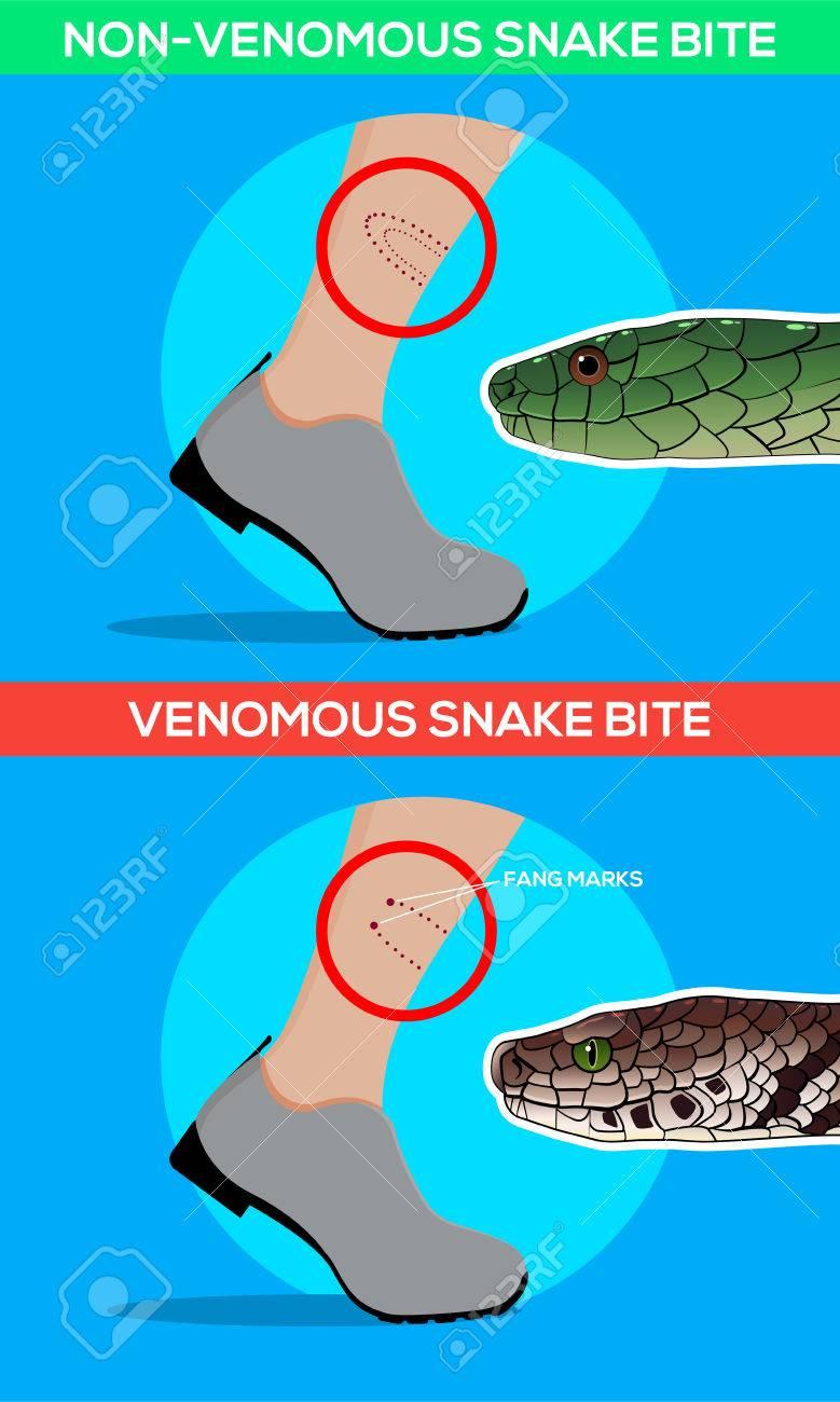 Venomous And Non Venomous Snake Bite In The Leg. Snakebite. Beware ...