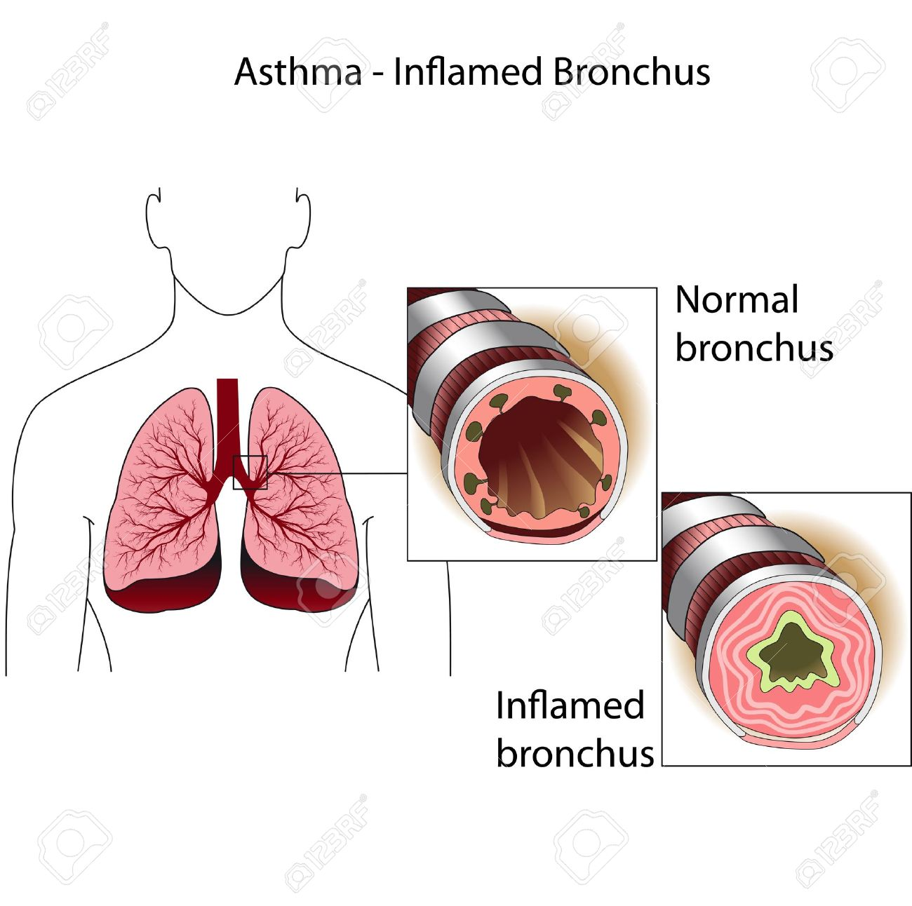 The bronchial tubes  of healthy person and a person suffering from bronchial asthma  Medical poster Stock Vector - 13357733