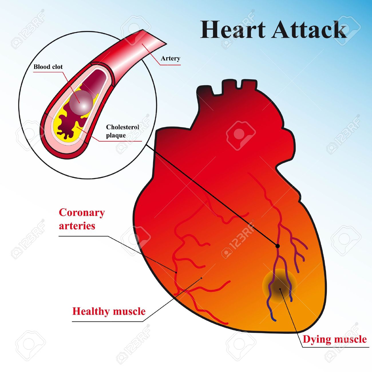 Schematic explanation of the process of heart attack royalty free schematic explanation of the process of heart attack stock vector 13453868 ccuart Images