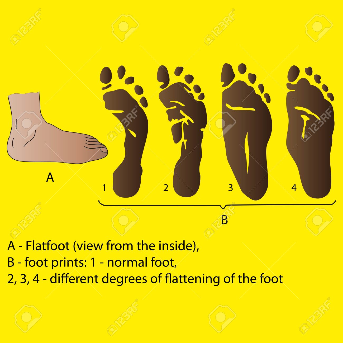 Different Degrees Of Flattening Of The Foot Medicine Poster ...