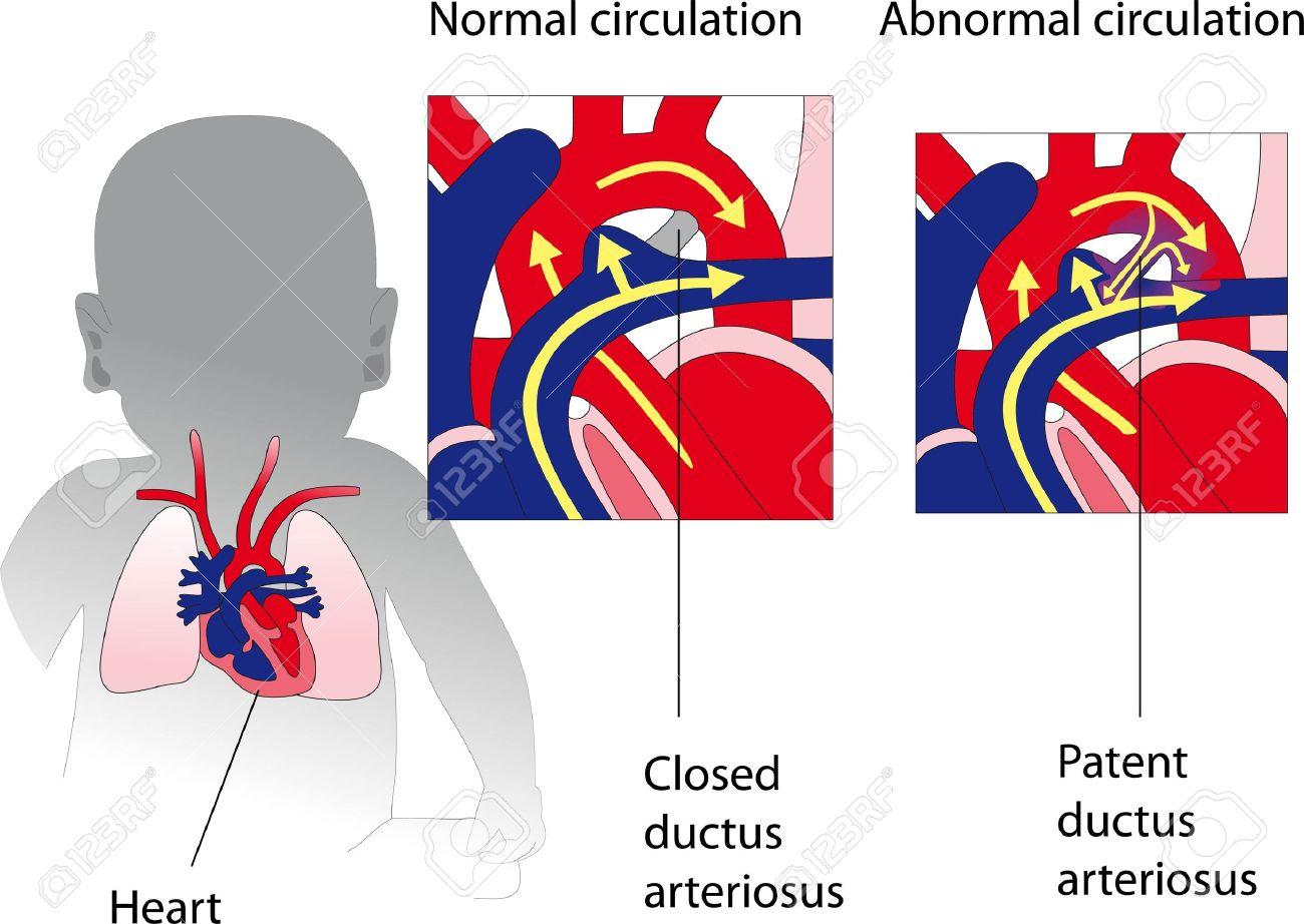 Ductus Arteriosus Anatomy Patent Ductus Arteriosus