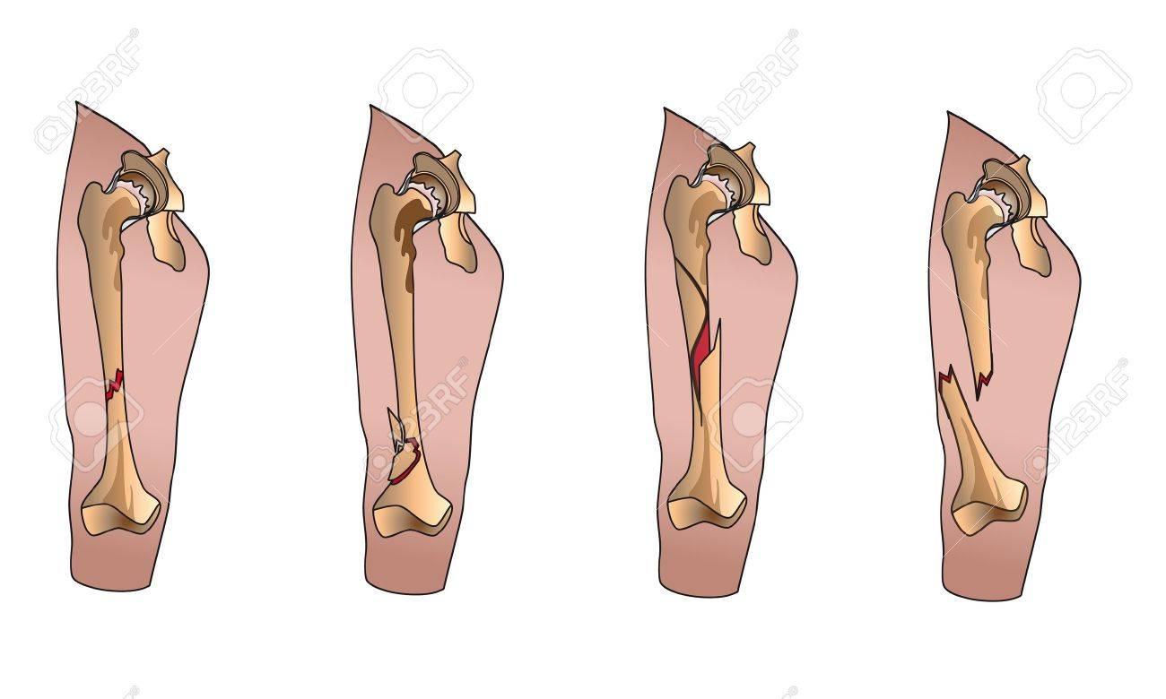 Types of bone fractures leg Stock Vector - 13453913