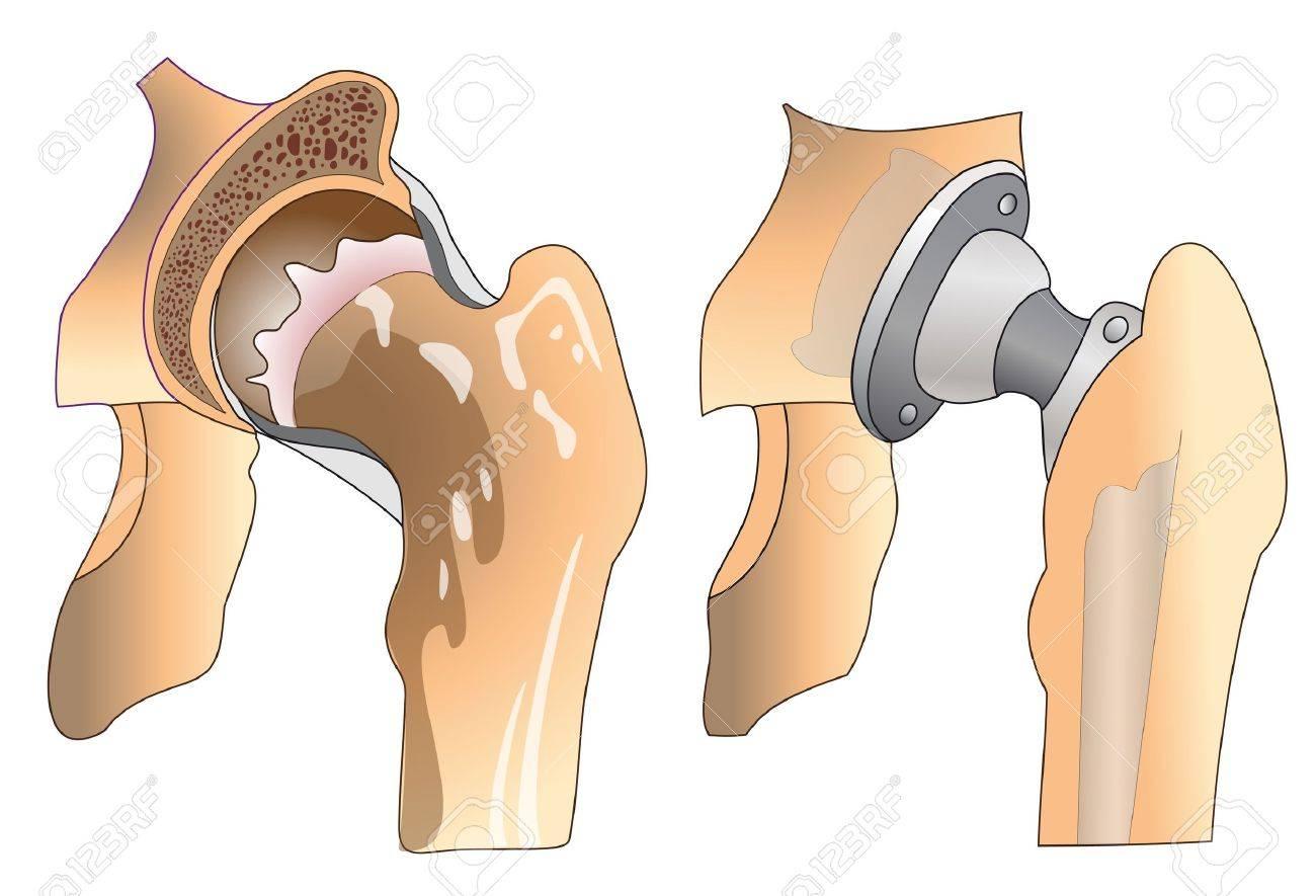 Секс после замены тазобедренного сустава и позы 3 фотография
