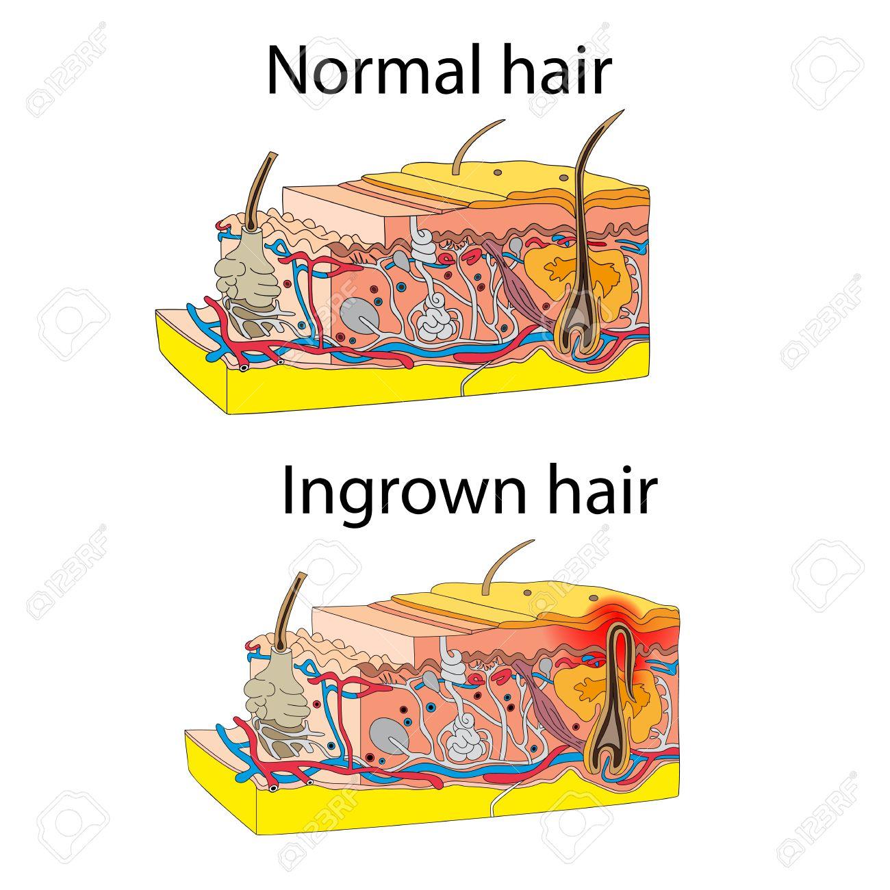 Skin with ingrown hair  Cross section