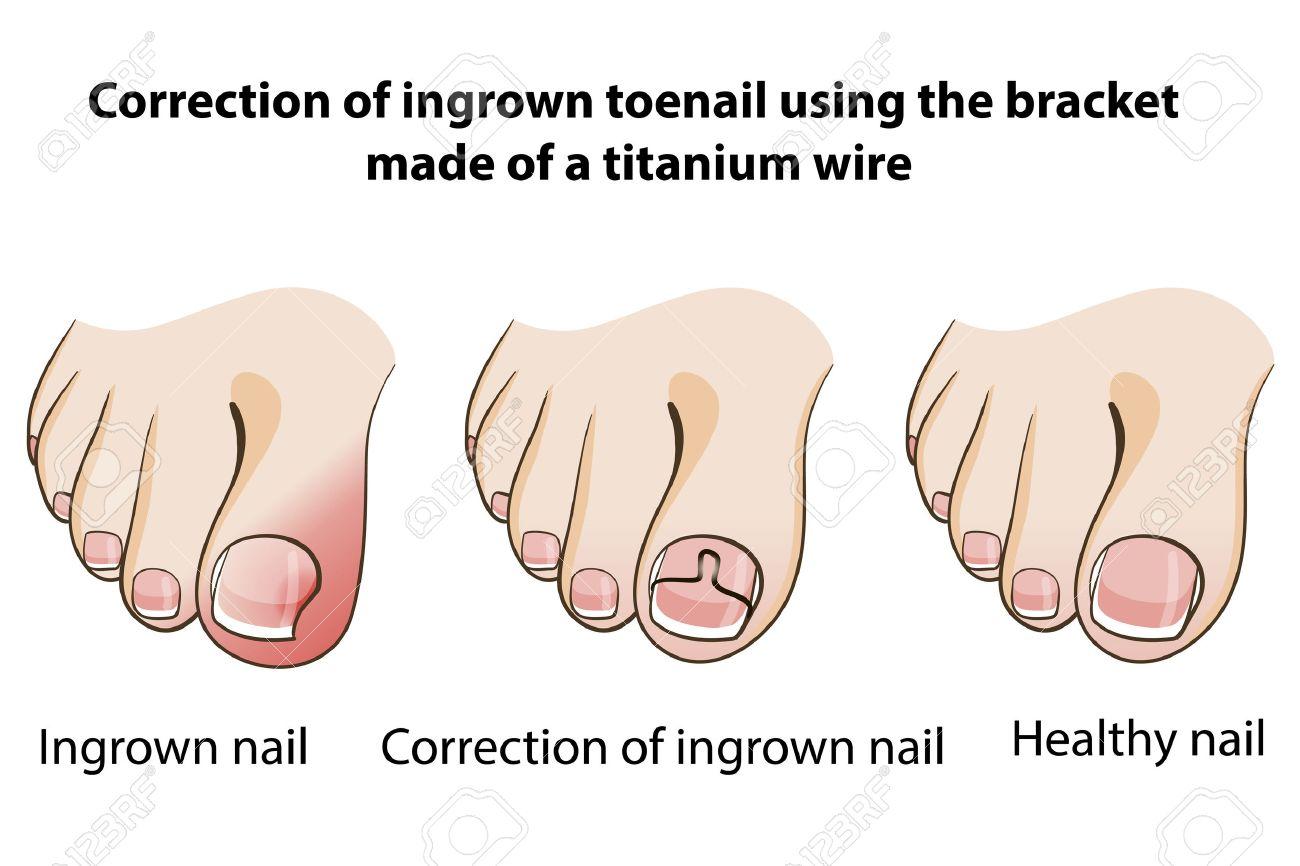 Correction of ingrown nail royalty free cliparts vectors and correction of ingrown nail stock vector 39377786 pooptronica