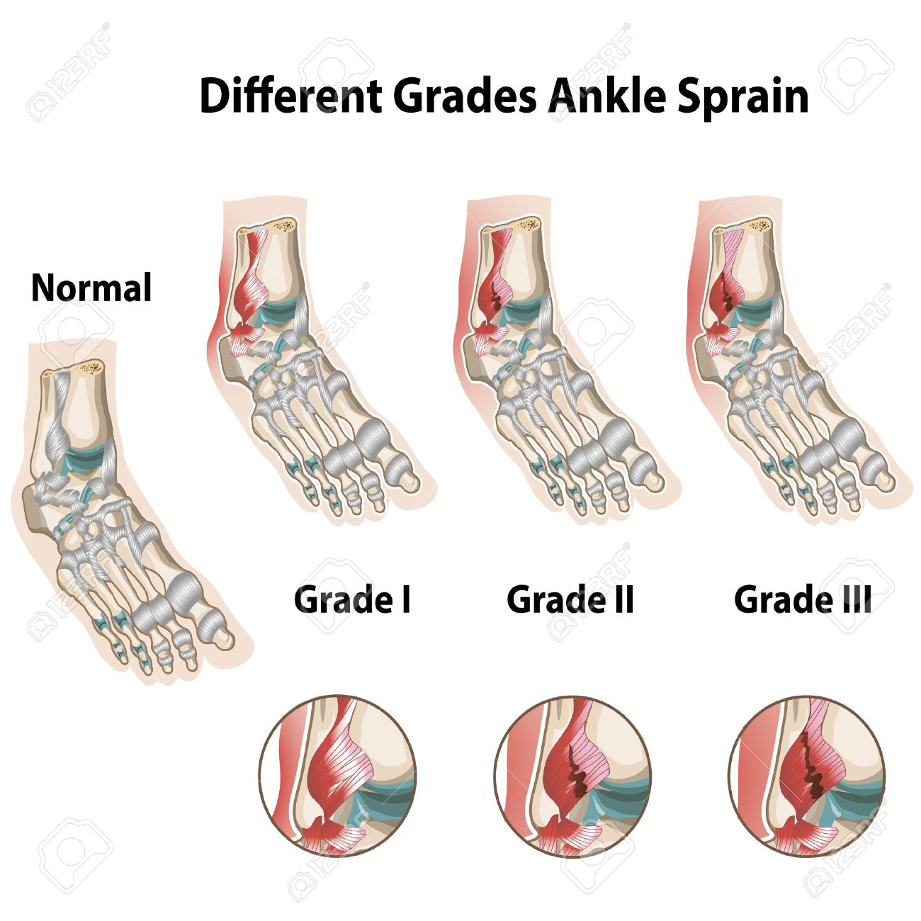 Different grades of ankle sprains - 39495350