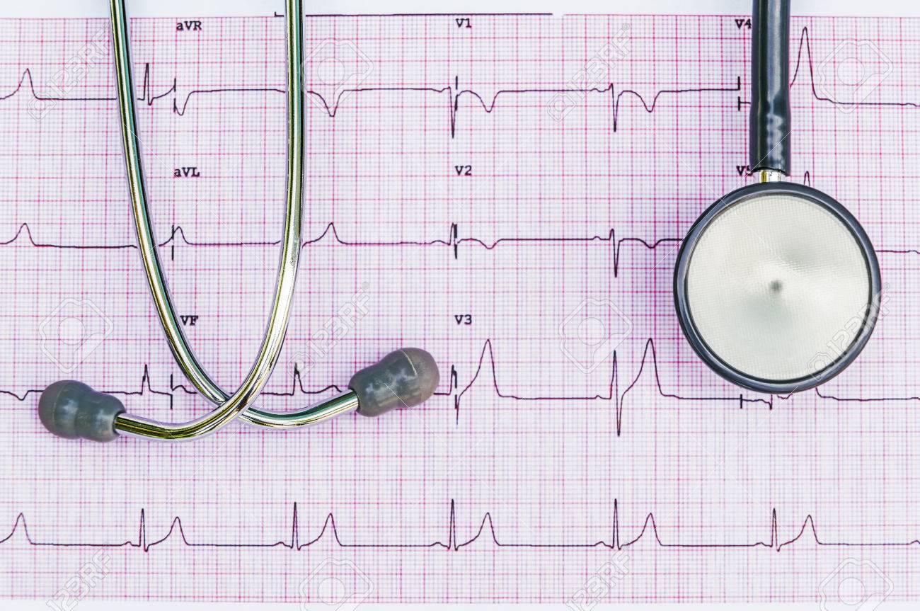 Stethoscope lying on ECG diagram Stock Photo - 32768059