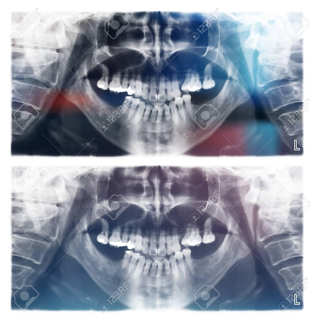 Panorámica Dental De Rayos X De Exploración Humana Para Los Dientes ...