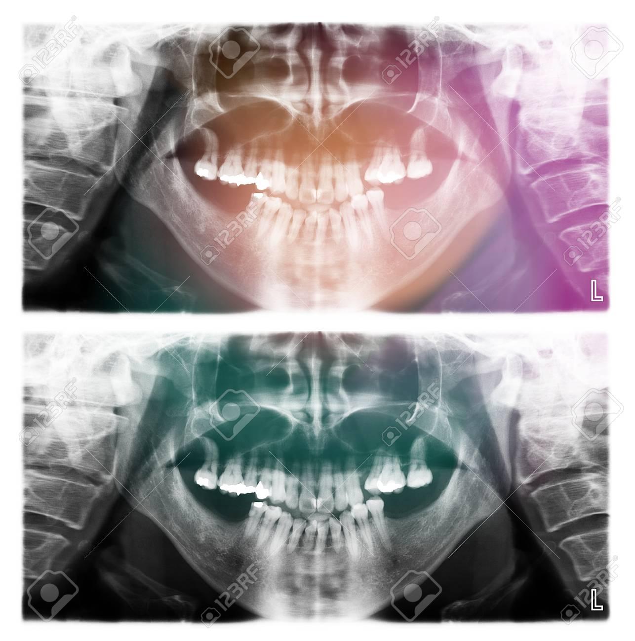Panorama-Dental-Röntgenscan Mensch Für Die Zähne Lizenzfreie Fotos ...