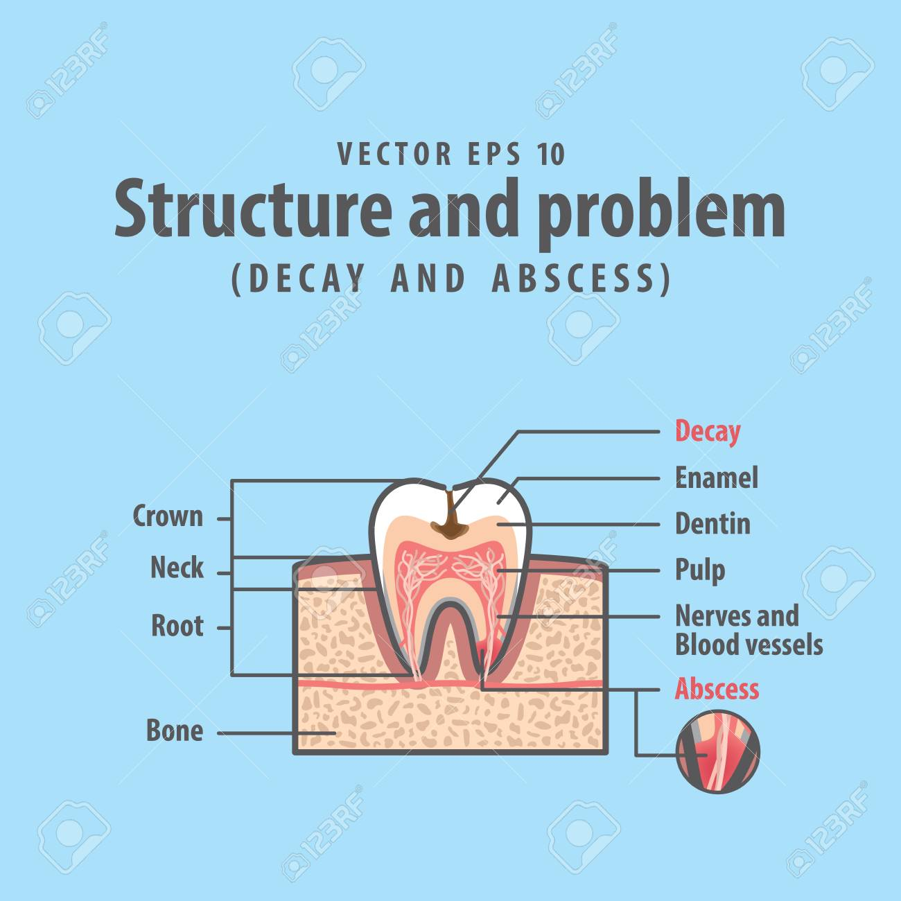 decay and abscess cross-section structure inside tooth diagram and chart  illustration vector on blue