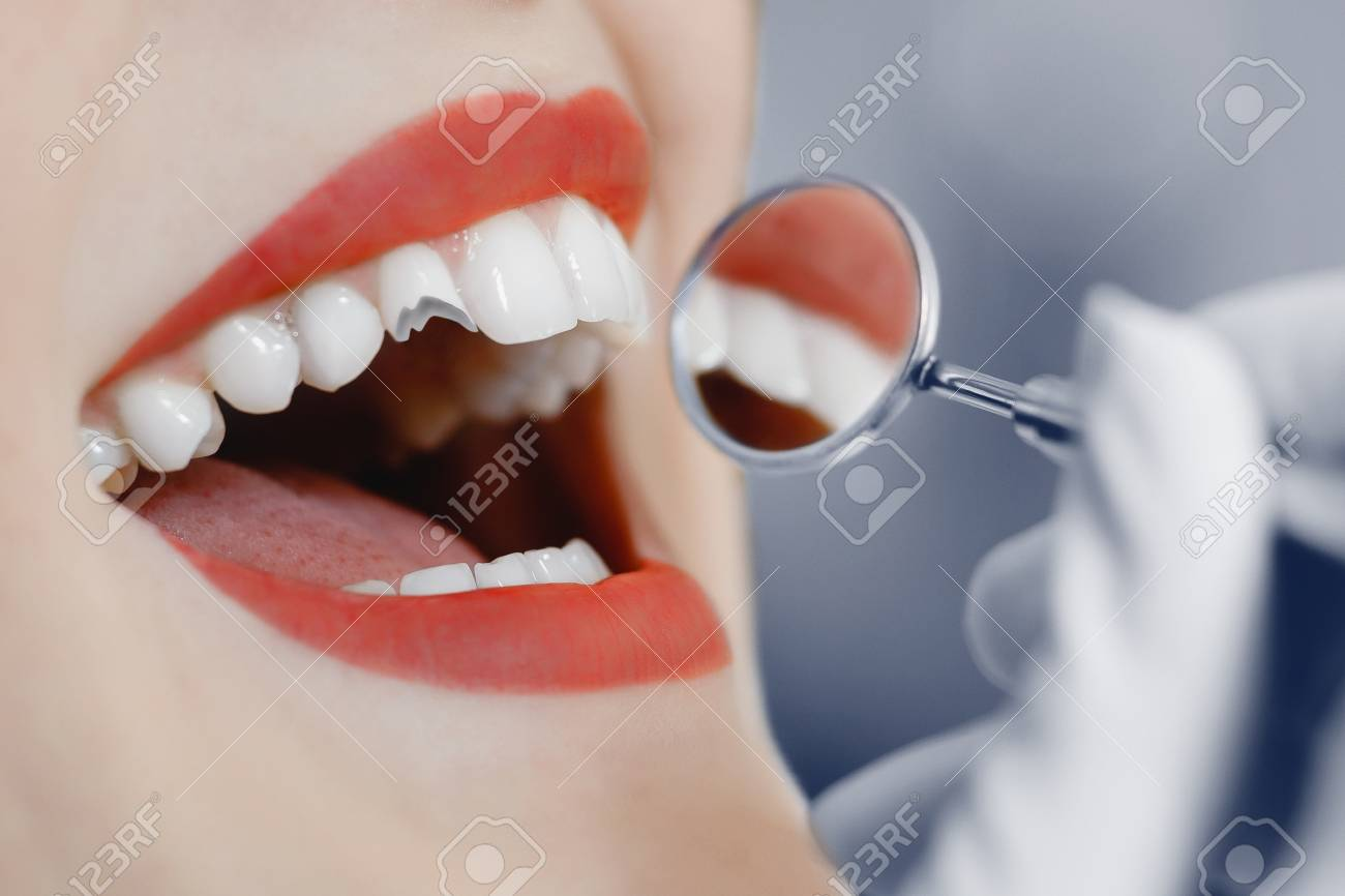 Broken tooth. A girl at a dentist's reception at dentist, a tooth broke. - 96973194