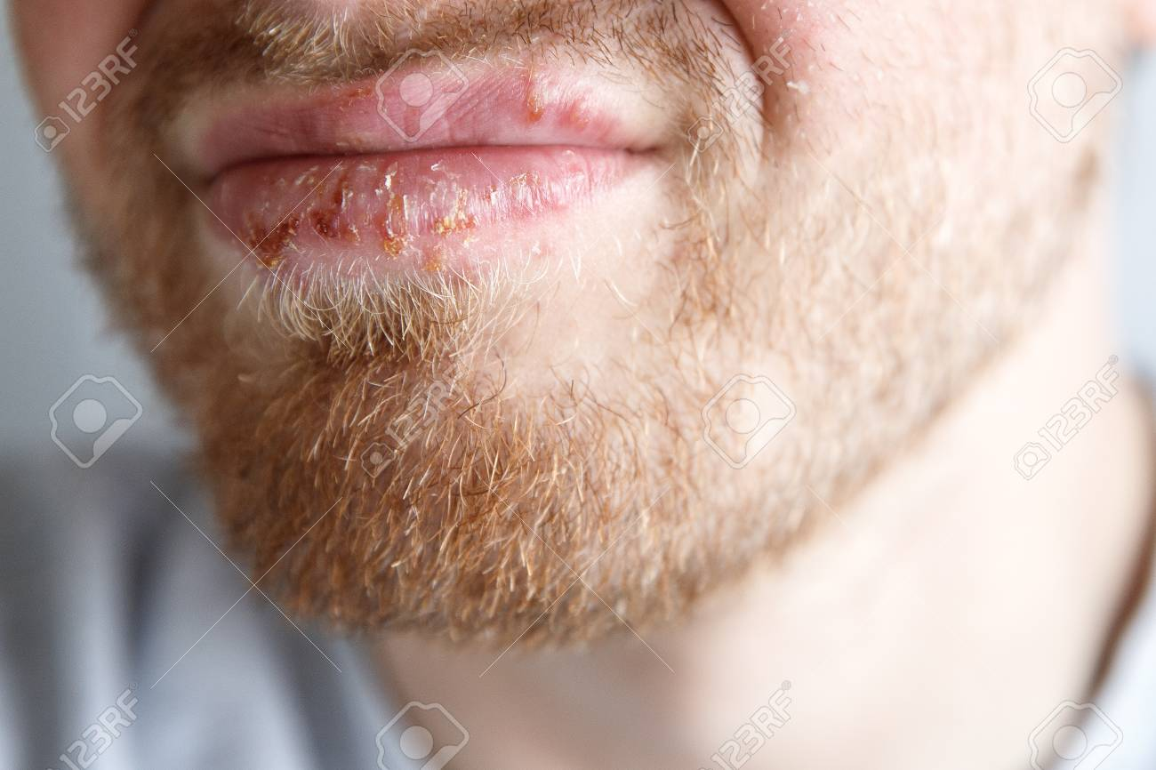 Close-up of herpes on lips cold of man  Dermatological oral skin