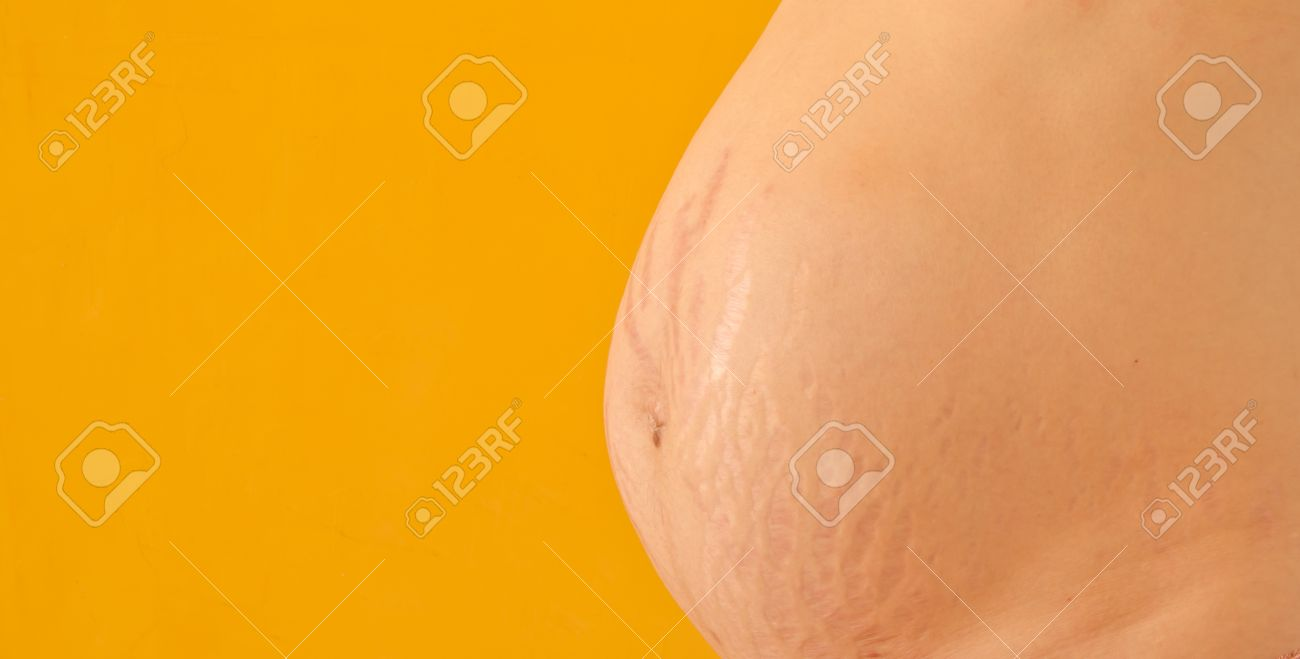 Stretchmark scar on the belly of pregnant woman Stock Photo - 21652688