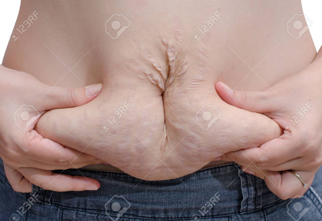 Asian woman showing her stretch marks Stock Photo - 30526516