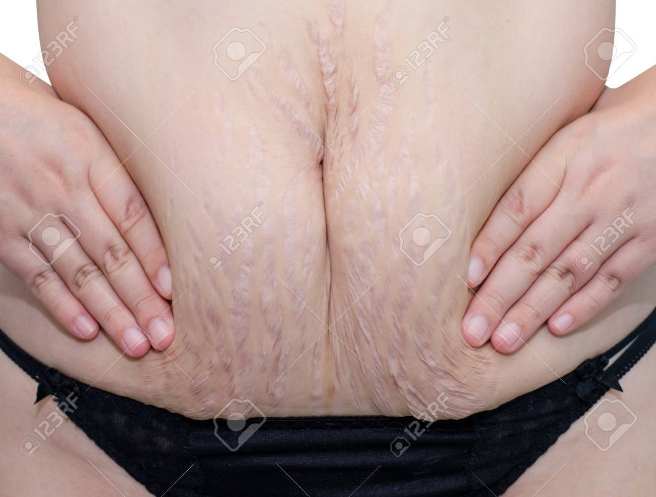 Closeup of woman belly with stretch marks. Stock Photo - 33729660