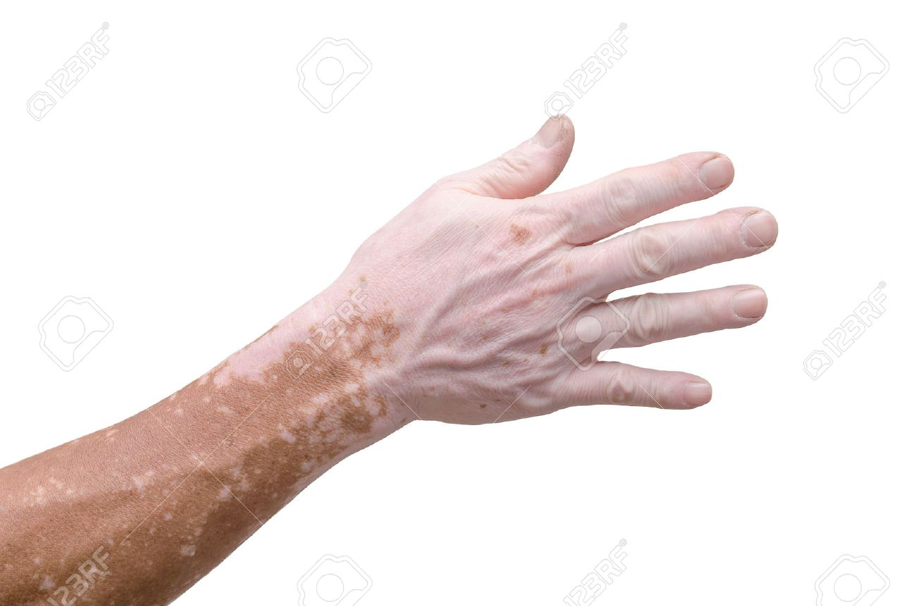 Man's hand with with vitiligo on white background Stock Photo - 51896439