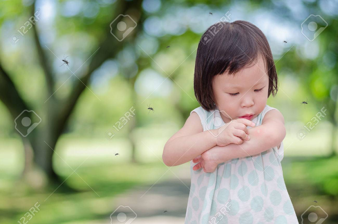 Little Asian girl has allergies with mosquitoes bite Stock Photo - 50494465