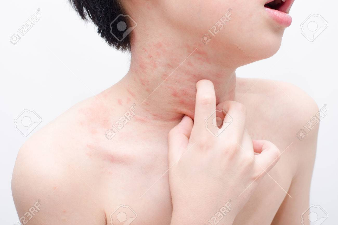 Young asian boy scratching his skin over white Stock Photo - 63839522