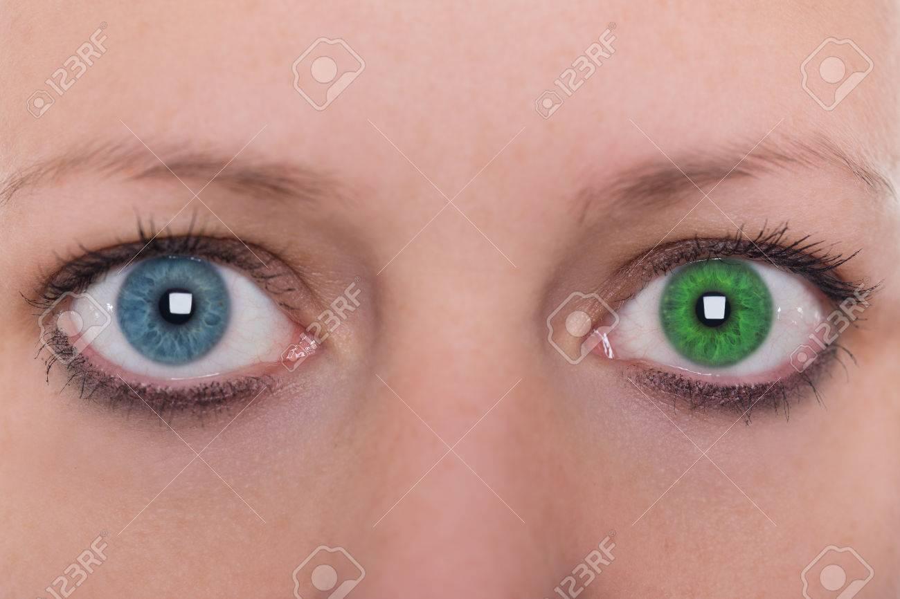Hétérochromie jeune femme avec hétérochromie, deux la couleur des yeux différents