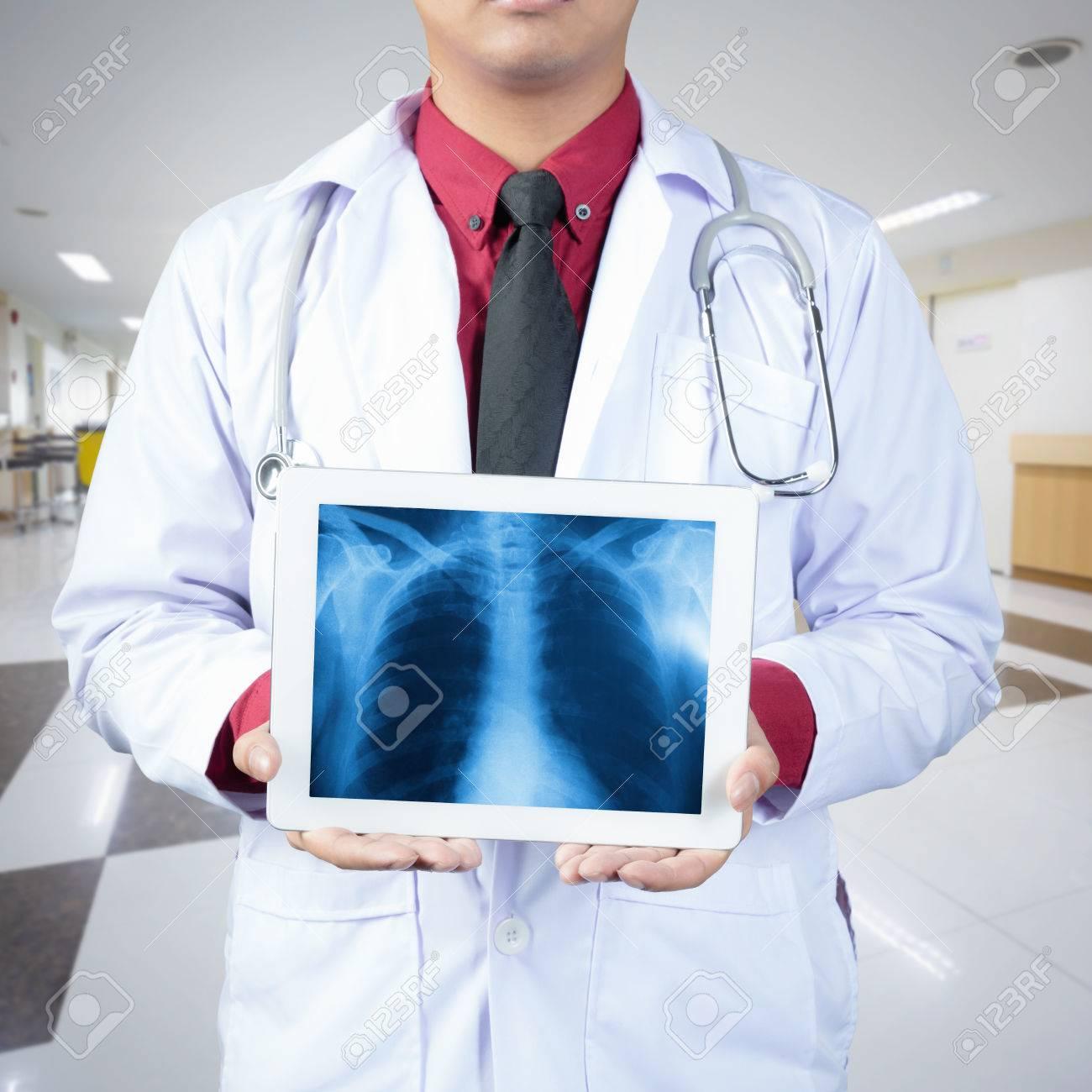 Doctor Holding Tablet-Computer Normale Männliche Bruströntgenbild ...
