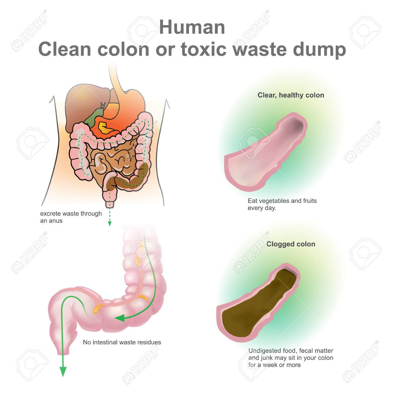 Colon Obstruido Humana, Colon Saludable. Vertedero De Residuos ...