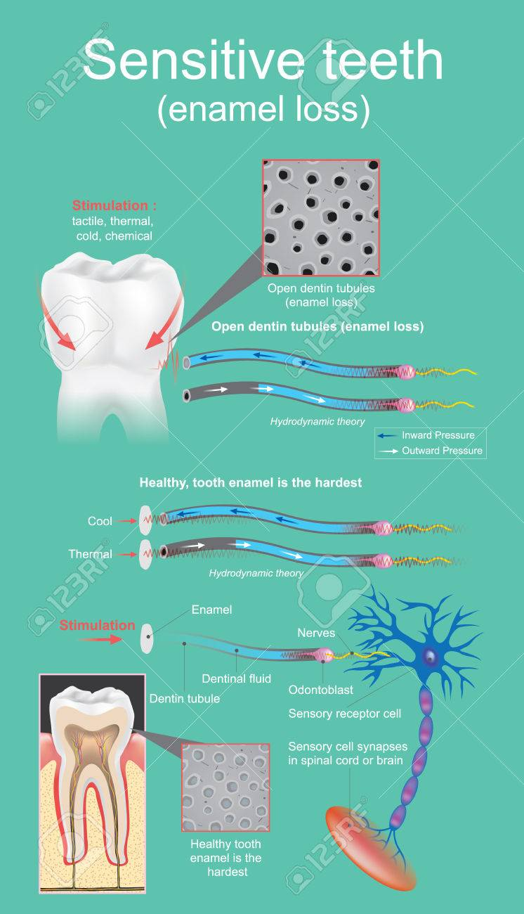 Sensitive dental is defined as intense and transitory pain that is cause by the exposure of the dentin. Vector graphic design. - 83031066