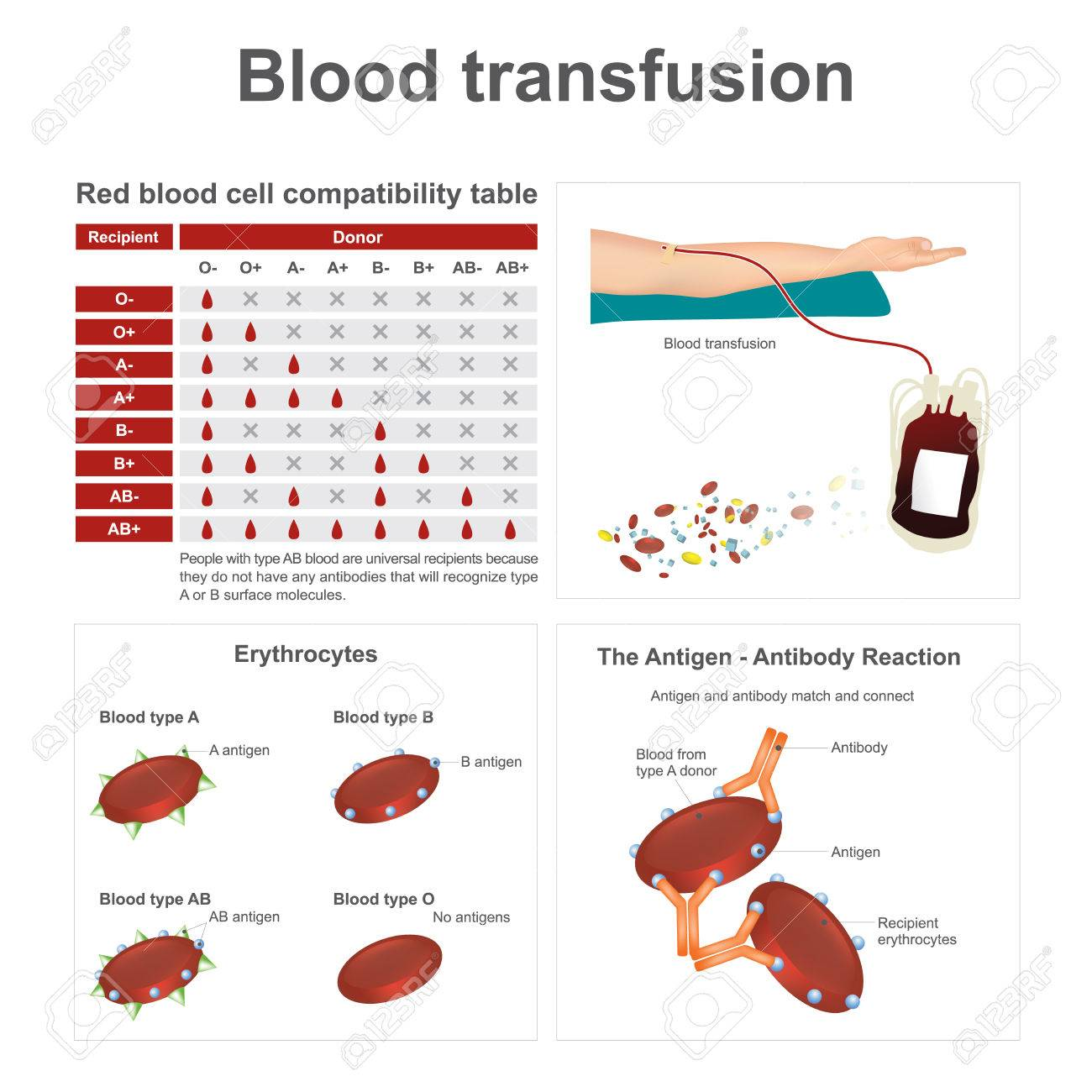 Blood types match what Blood Types