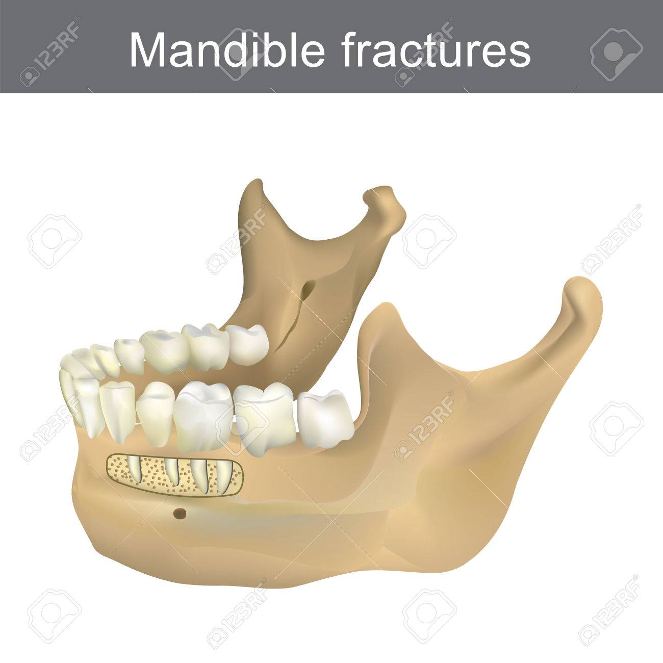 Mandible Fractures Is The Largest, Strongest And Lowest Bone ...
