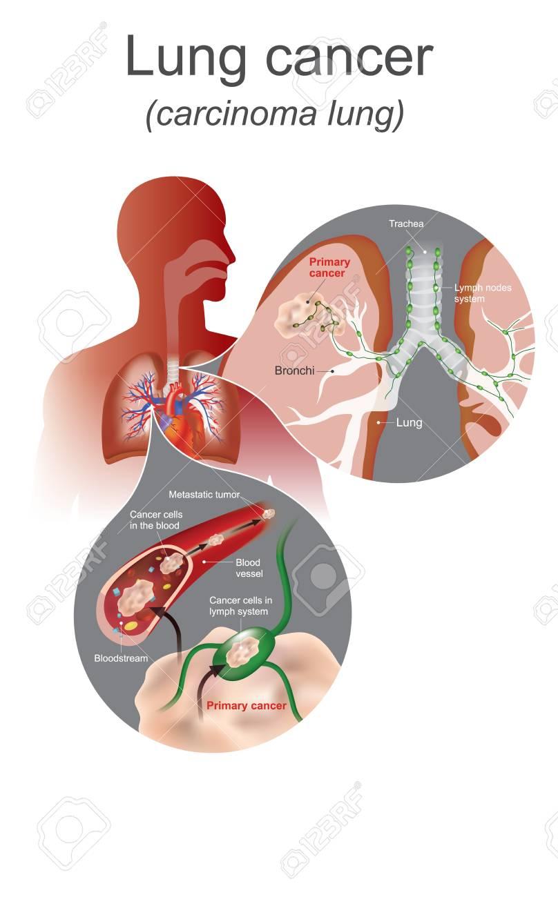 Beste Anatomie Und Physiologie Bilder Von Geweben Bilder ...