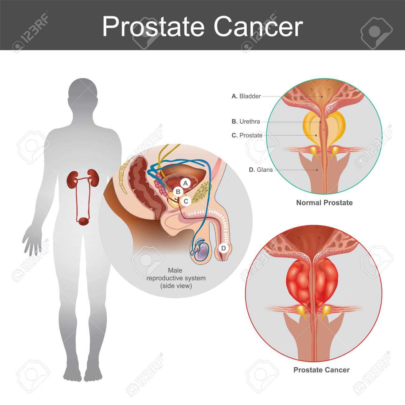 il cancro alla prostata uccide gli uomini