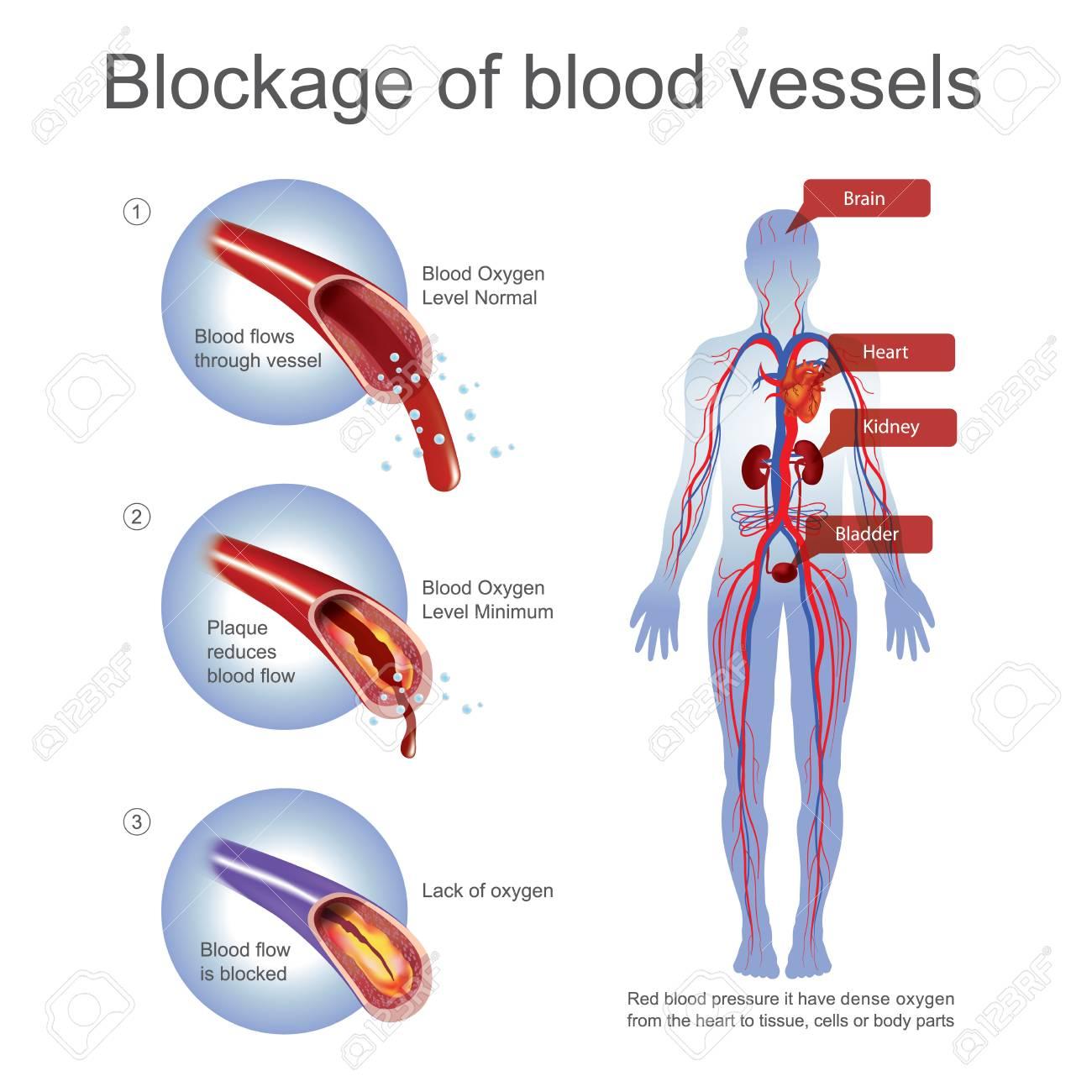 micción frecuente de la presión arterial