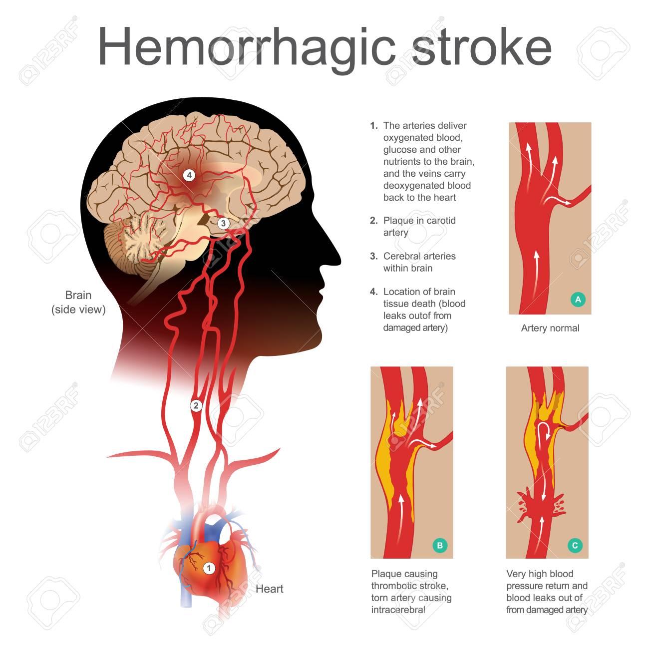 Ilustración Accidente Cerebrovascular Hemorrágico Ilustraciones ...