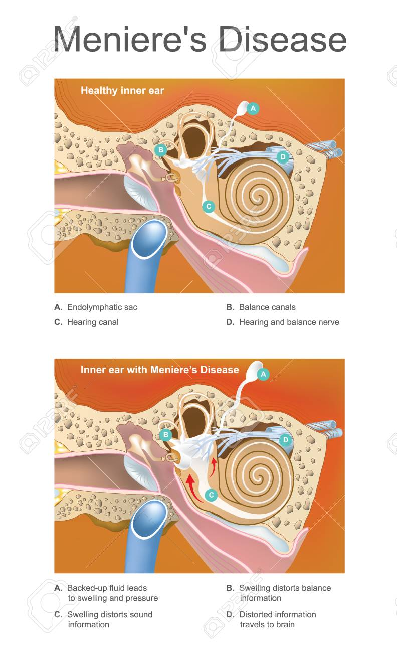 Disorder of the inner ear that can effect hearing and balance to a varying degree. - 92262072