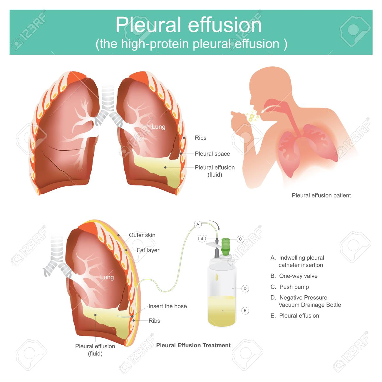 Pleural Effusion Is An Accumulation Of Fluid In The Chest Or