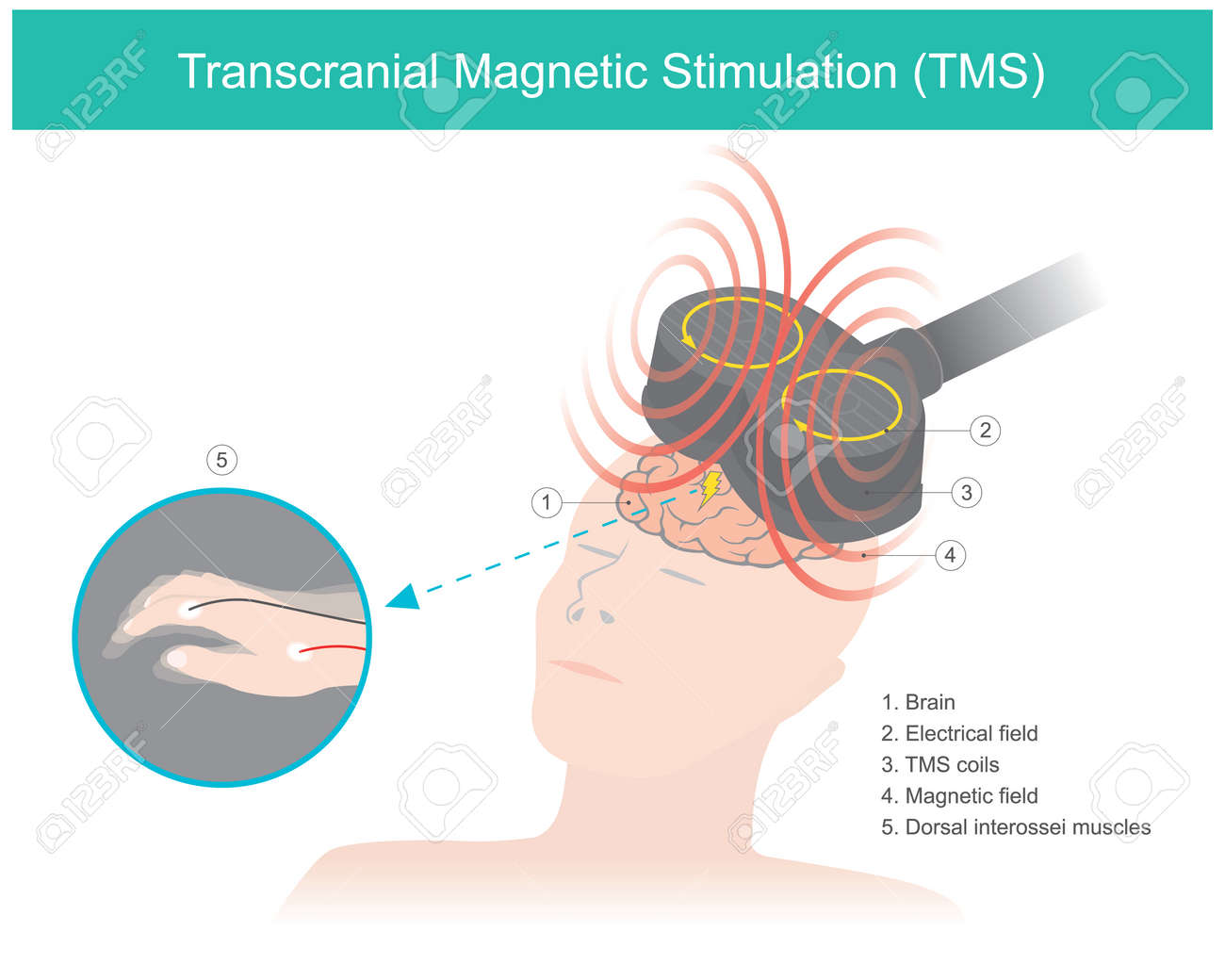 Transcranial Magnetic Stimulation (TMS). The brain stimulation in which a changing magnetic field is used to cause electric current. Healthcare and medical illustration. - 166227163