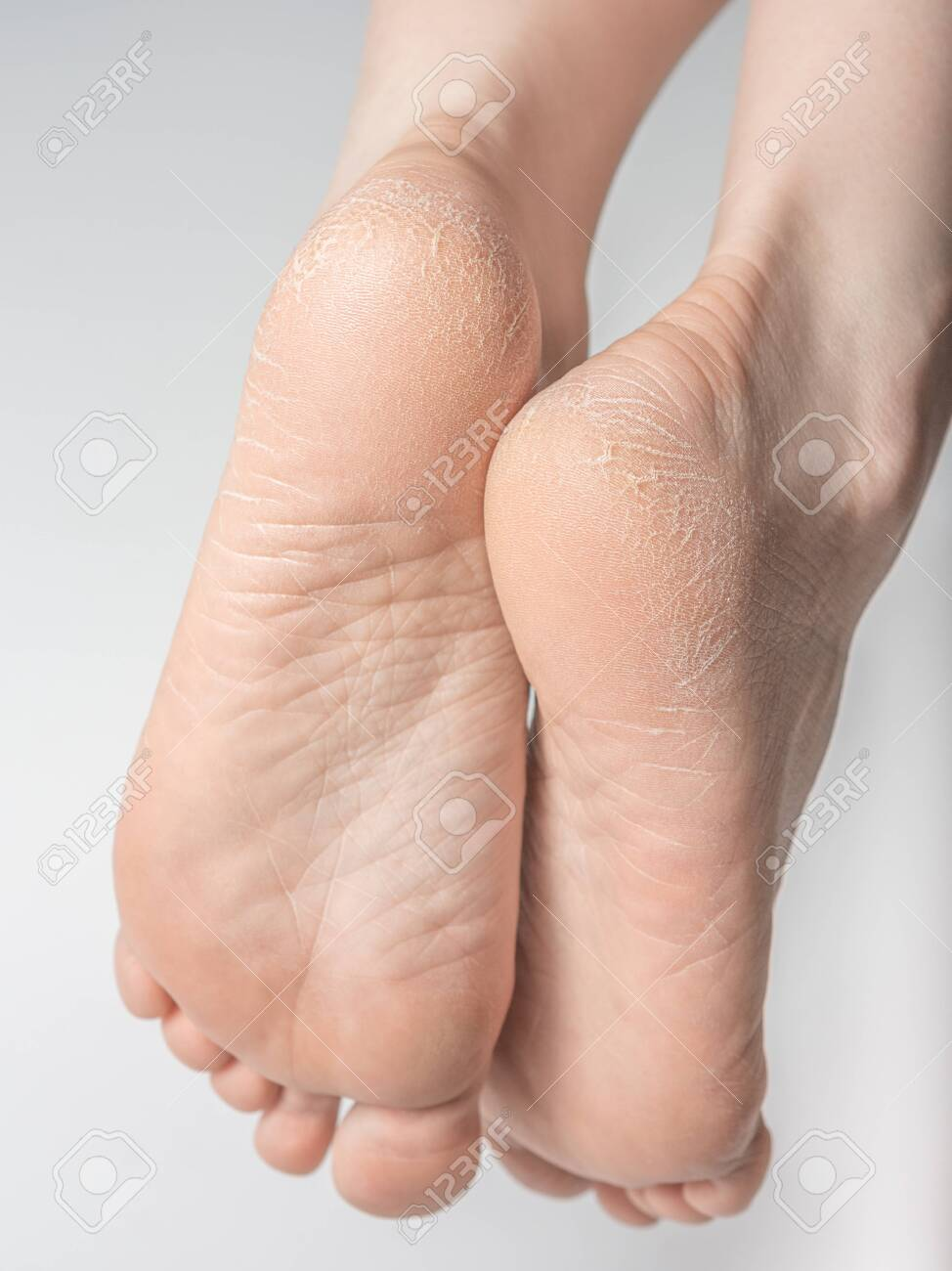 White Background. Foot Treatment