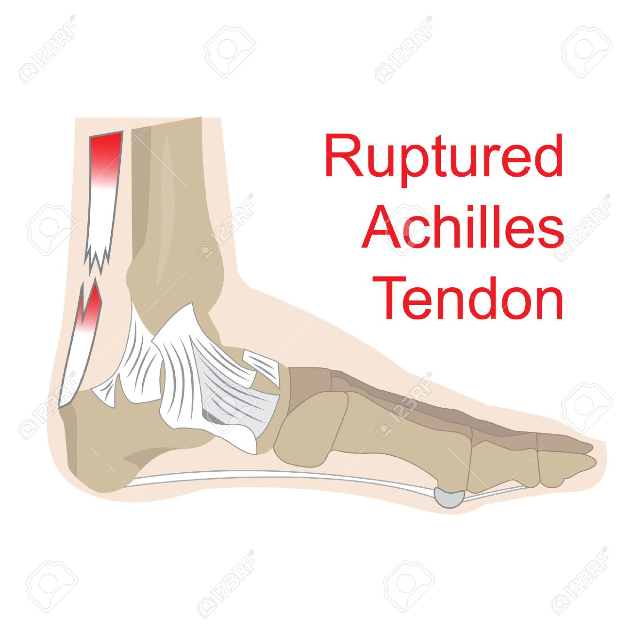 Vector Illustration Of Achilles Tendon Rupture. Image Of Foot ...