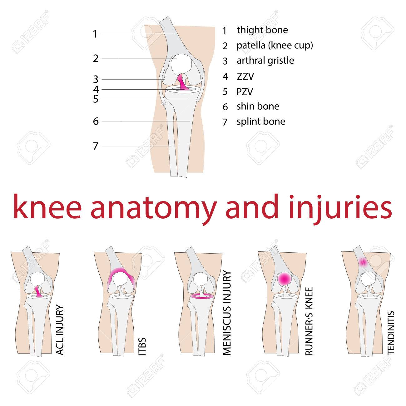Vector Illustration Of Knee Anatomy With Description And Injuries ...