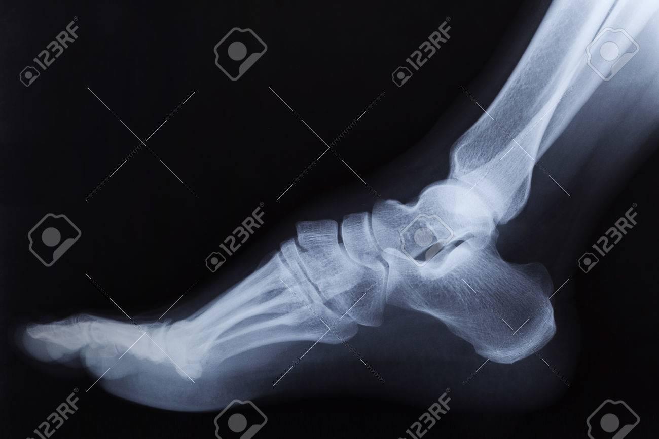 Radiografía Roto El Tobillo Del Pie Derecho, Vista Lateral Fotos ...