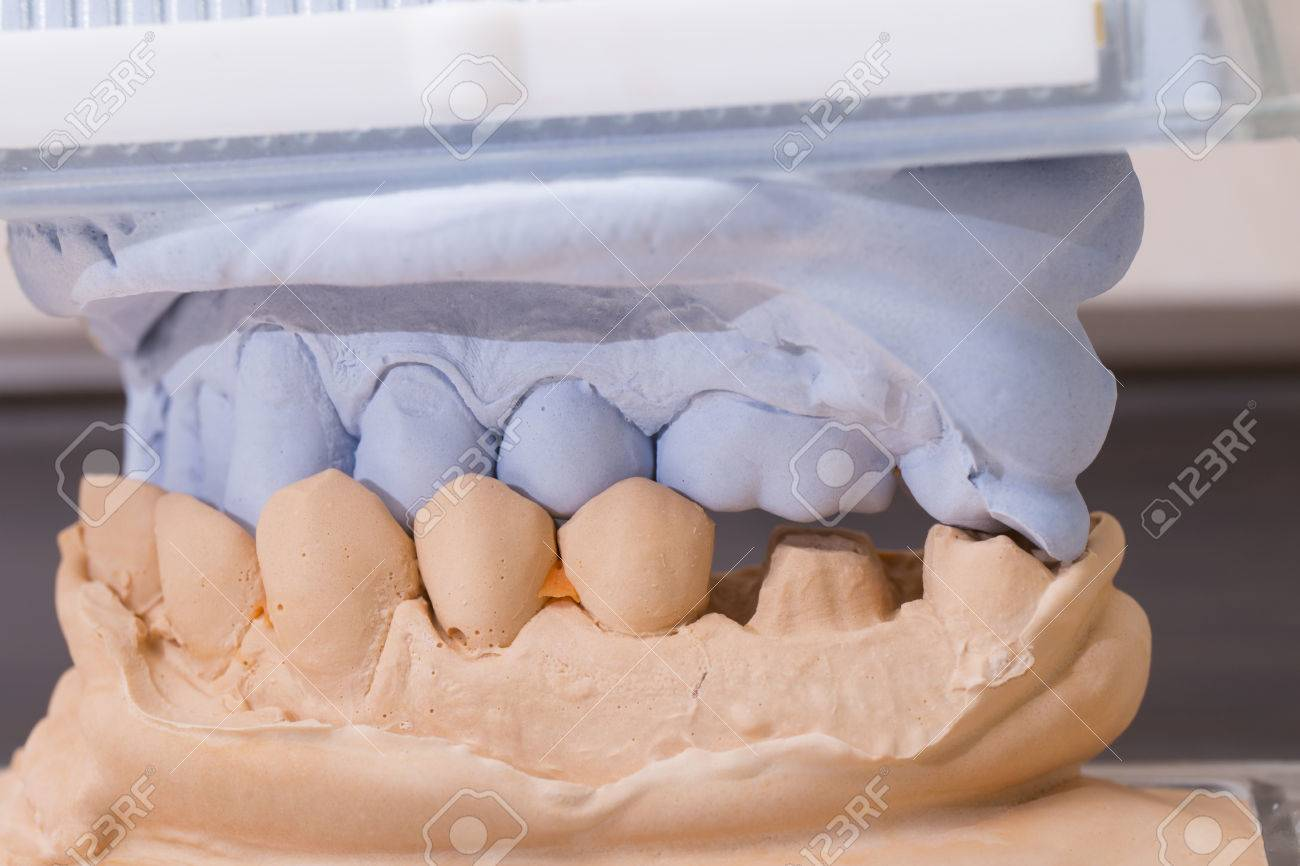 Dental mold and models with prosthetic teeth for cermet in the