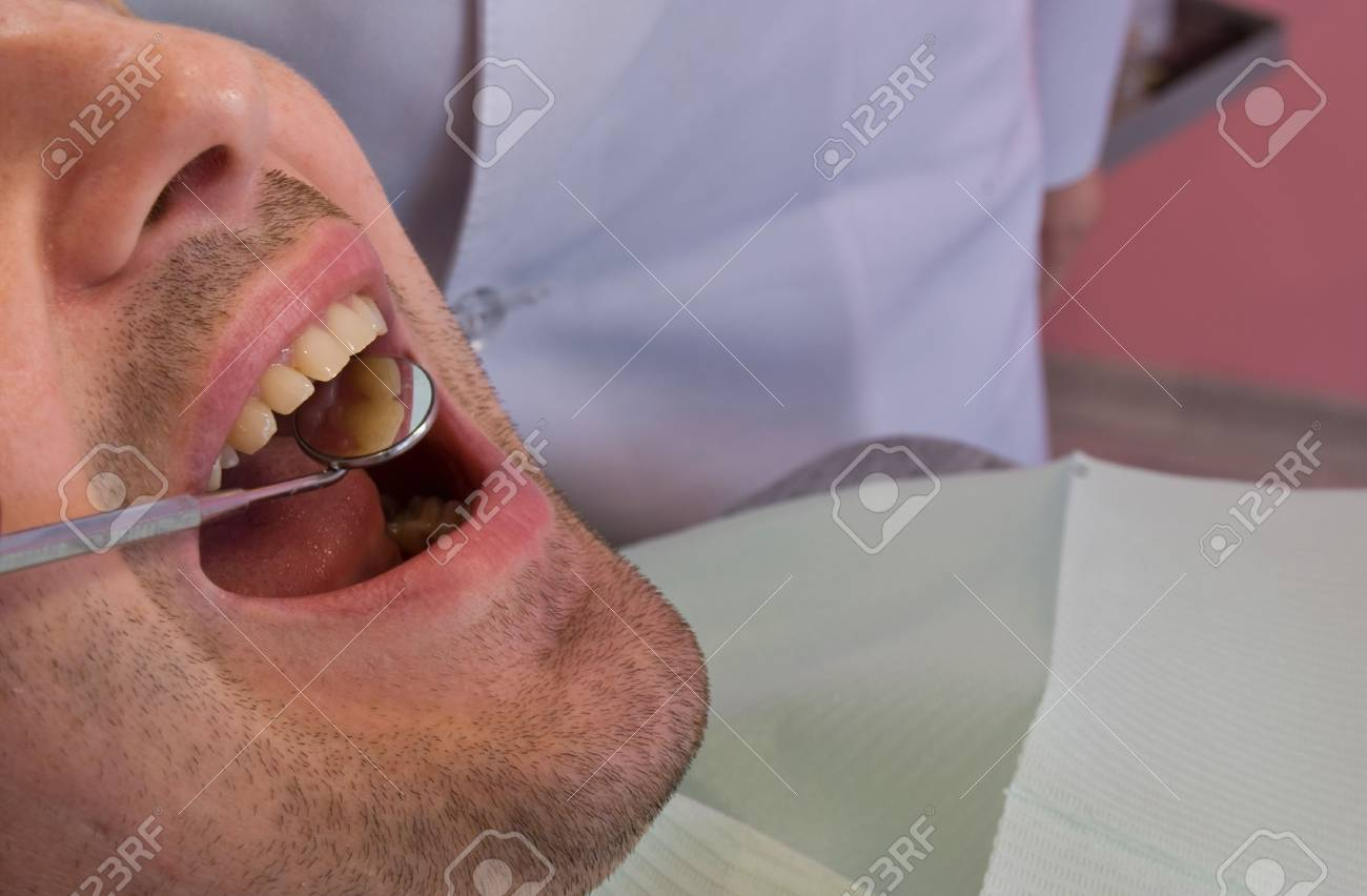open mouth before oral inspection mirror near by Stock Photo - 7542189